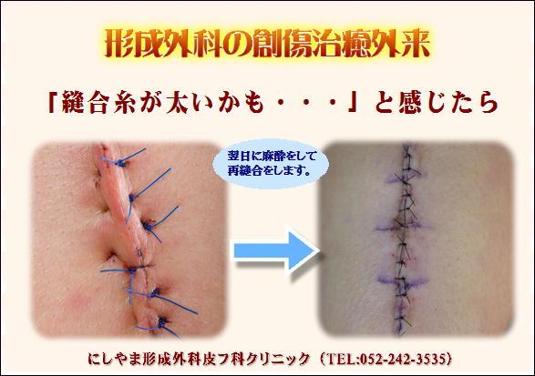 形成外科の創傷治癒外来.JPG